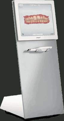 Intraoralscanner - Kieferorthopäde Digitaler Abdruck